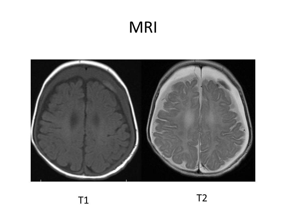 MRI T1 T2