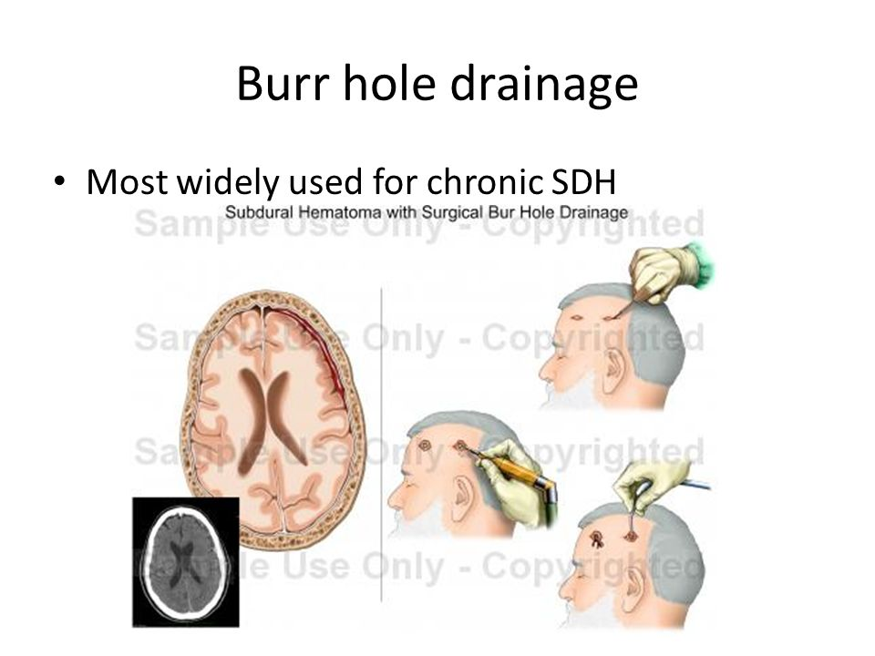 Burr hole drainage Most widely used for chronic SDH