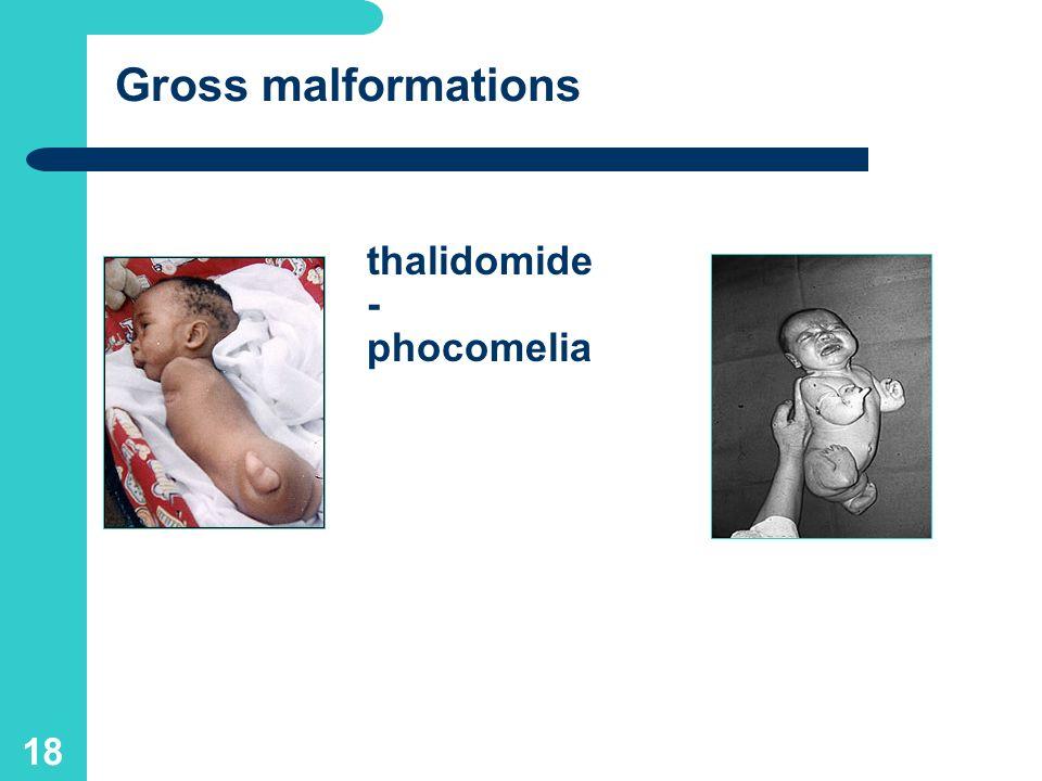 17 C o n f i r m e d teratogens (in h u m a n s): thalidomide (phocomelia), cytostatics-antimetabolites, lithium (cardiac defects), warfarin (chondrod