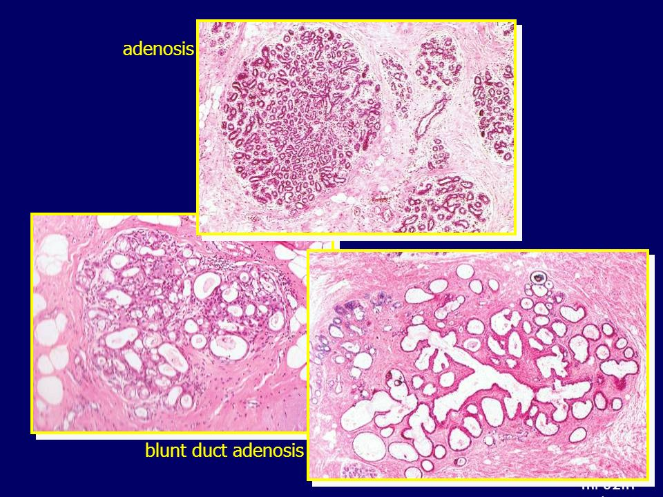 mrozin md adenosis blunt duct adenosis