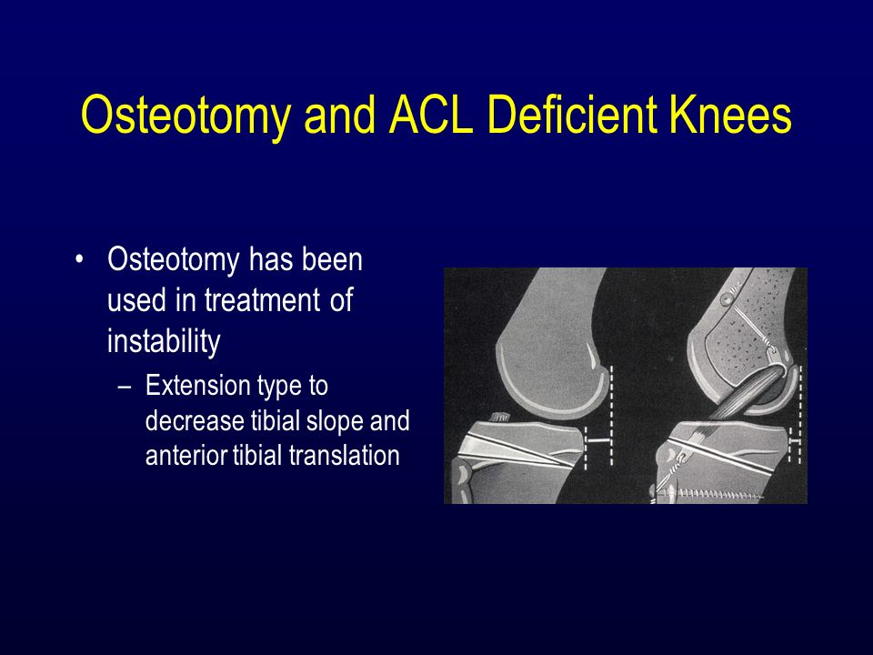 Osteotomy and ACL Deficient Knees Osteotomy has been used in treatment of instability –Extension type to decrease tibial slope and anterior tibial tra