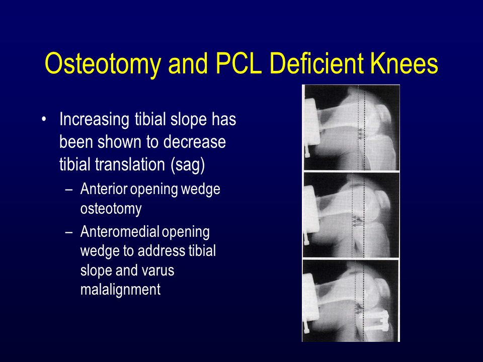 Osteotomy and PCL Deficient Knees Increasing tibial slope has been shown to decrease tibial translation (sag) –Anterior opening wedge osteotomy –Anter