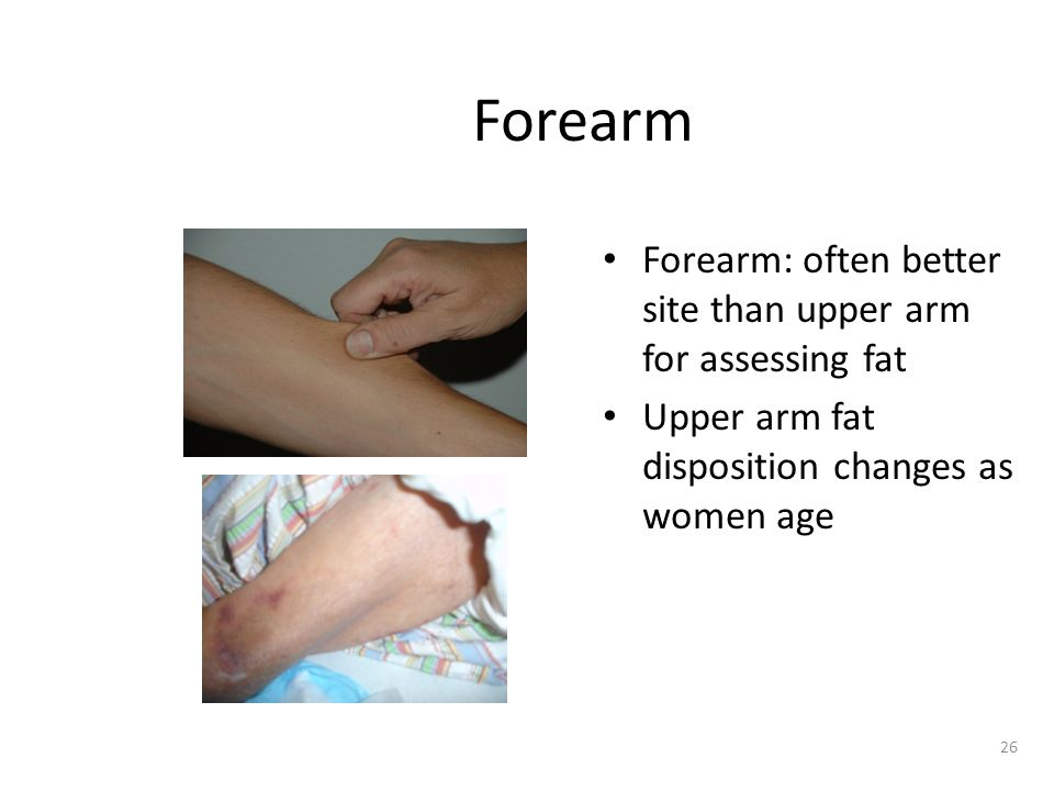 26 Forearm Forearm: often better site than upper arm for assessing fat Upper arm fat disposition changes as women age