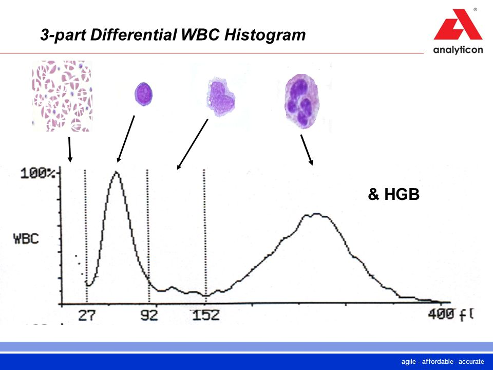 agile - affordable - accurate 3-part Differential WBC Histogram & HGB