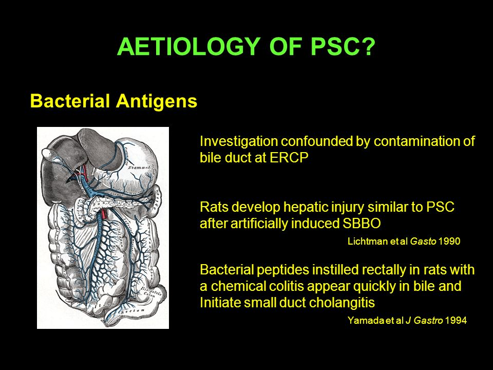 Bacterial Antigens AETIOLOGY OF PSC? Investigation confounded by contamination of bile duct at ERCP Rats develop hepatic injury similar to PSC after a