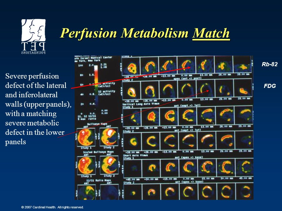 © 2007 Cardinal Health. All rights reserved. Perfusion Metabolism Match Rb-82 FDG Severe perfusion defect of the lateral and inferolateral walls (uppe
