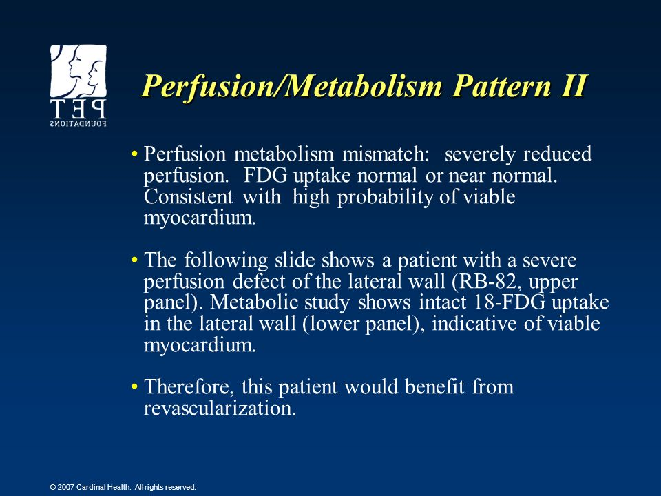 © 2007 Cardinal Health. All rights reserved. Perfusion/Metabolism Pattern II Perfusion metabolism mismatch: severely reduced perfusion. FDG uptake nor