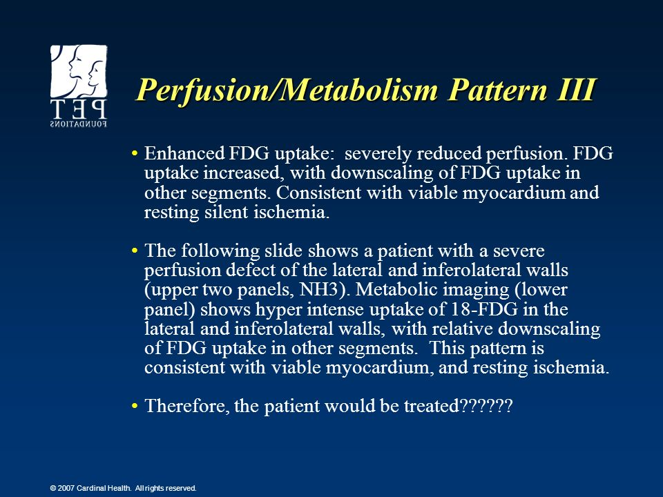 © 2007 Cardinal Health. All rights reserved. Perfusion/Metabolism Pattern III Enhanced FDG uptake: severely reduced perfusion. FDG uptake increased, w