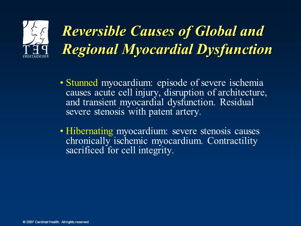 © 2007 Cardinal Health. All rights reserved. Reversible Causes of Global and Regional Myocardial Dysfunction Stunned myocardium: episode of severe isc