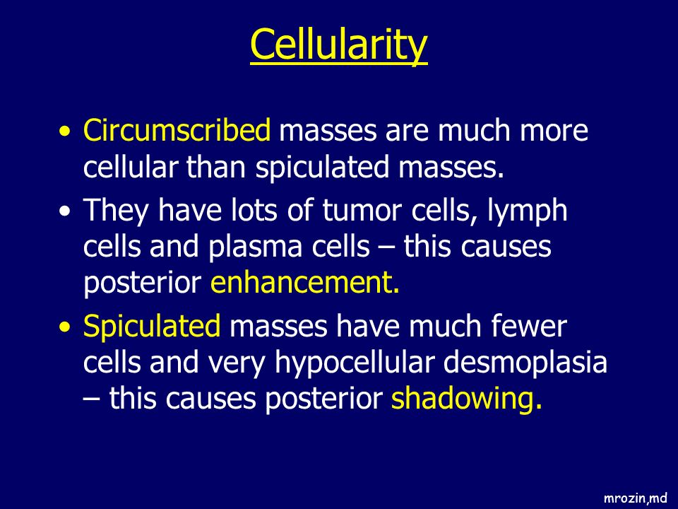 mrozin,md Cellularity Circumscribed masses are much more cellular than spiculated masses. They have lots of tumor cells, lymph cells and plasma cells