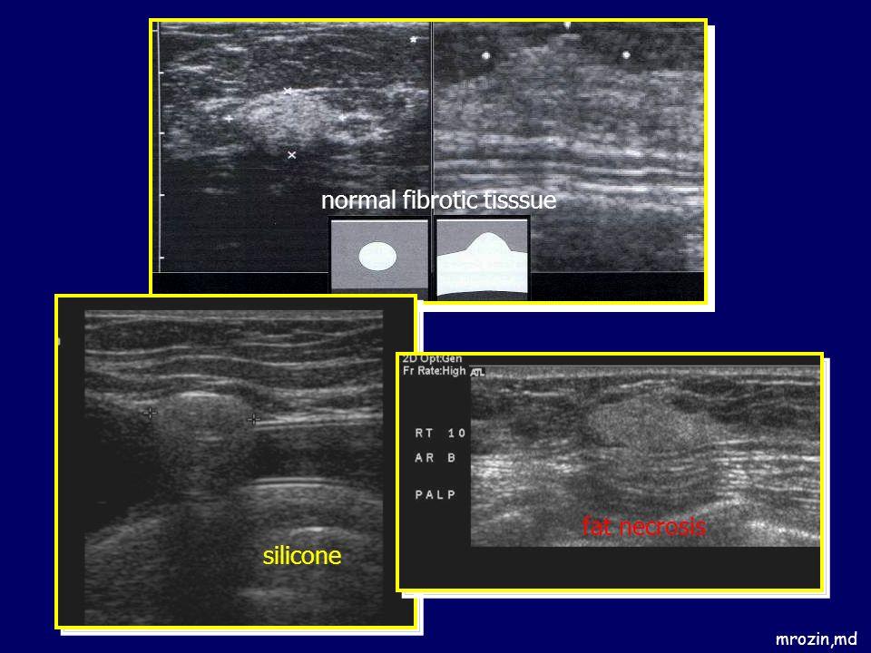 mrozin,md normal fibrotic tisssue silicone fat necrosis
