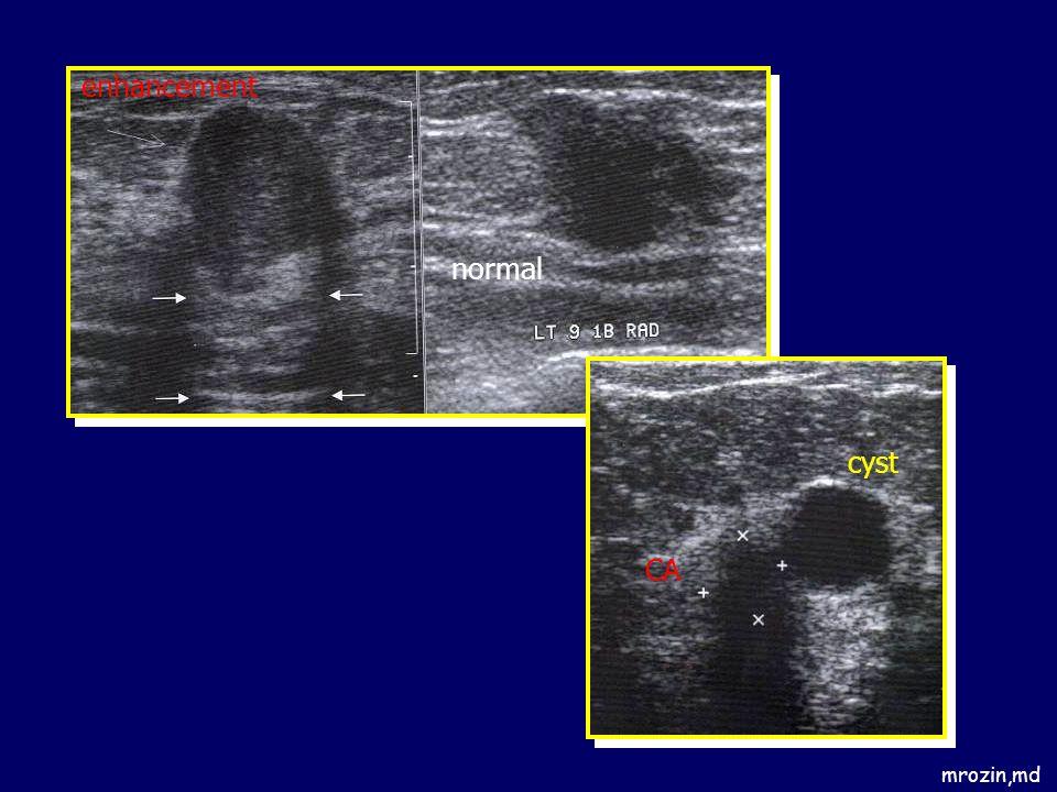 mrozin,md enhancement normal CA cyst