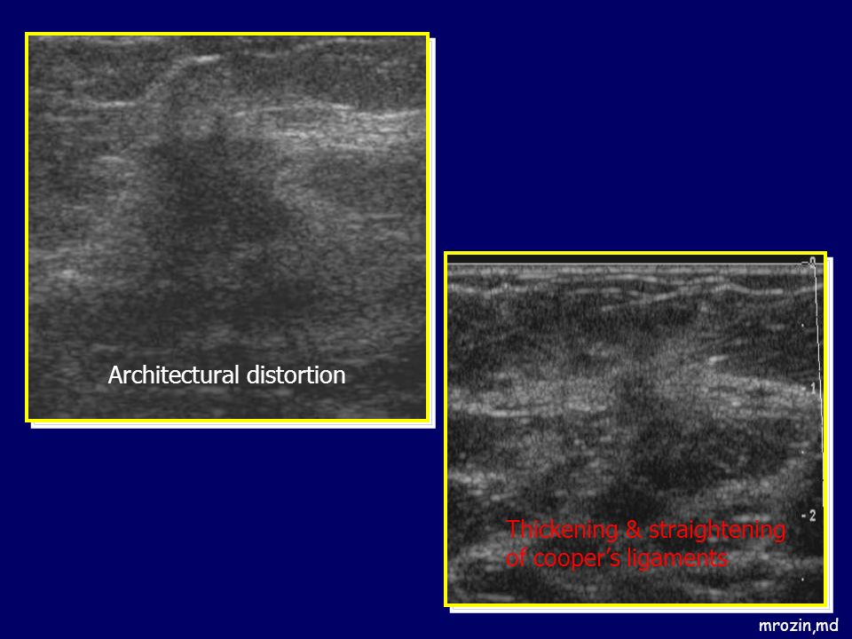 mrozin,md Architectural distortion Thickening & straightening of coopers ligaments
