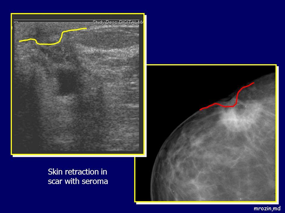 mrozin,md Skin retraction in scar with seroma