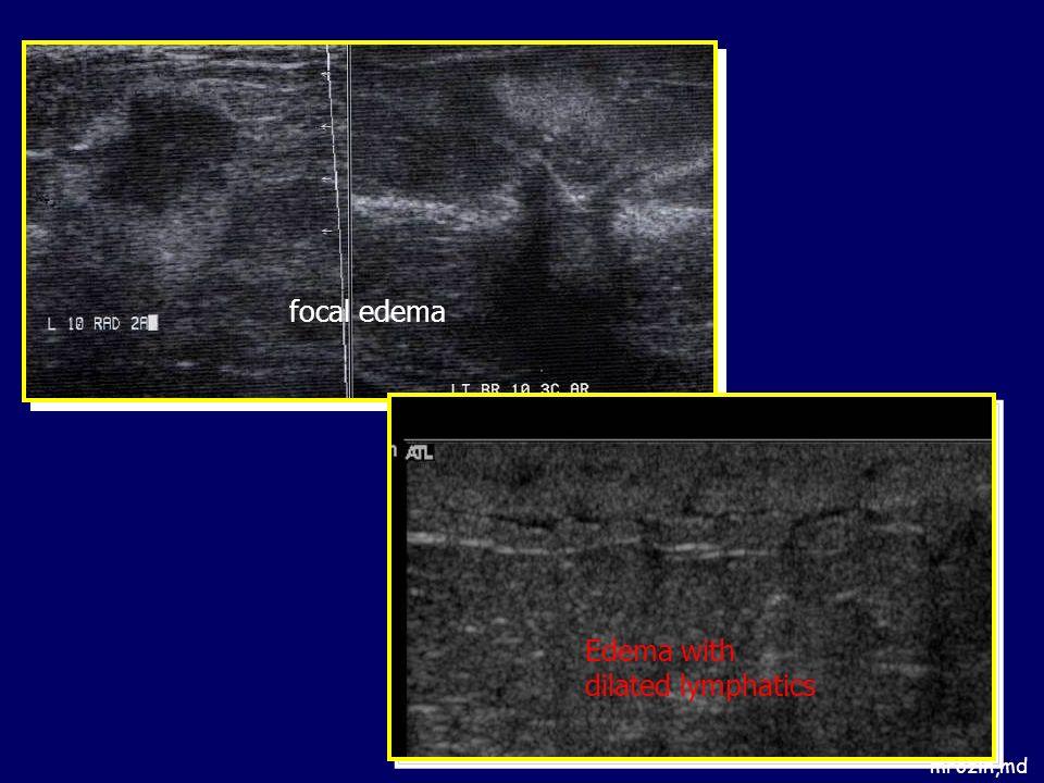 mrozin,md focal edema Edema with dilated lymphatics