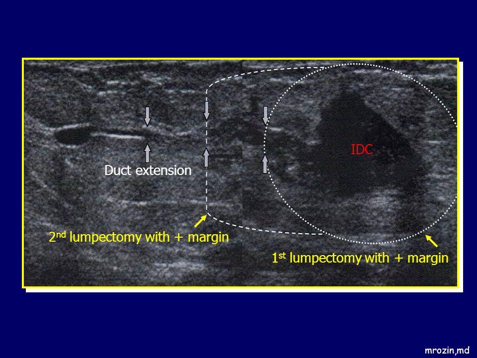 mrozin,md IDC 1 st lumpectomy with + margin 2 nd lumpectomy with + margin Duct extension