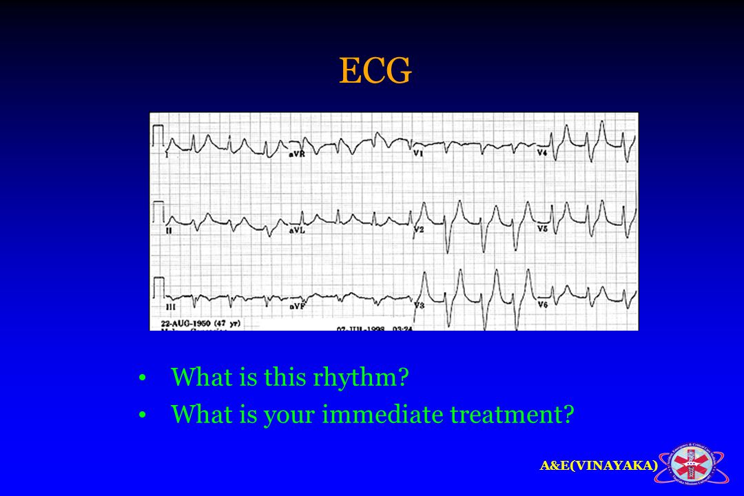 A&E(VINAYAKA) ECG What is this rhythm? What is your immediate treatment?