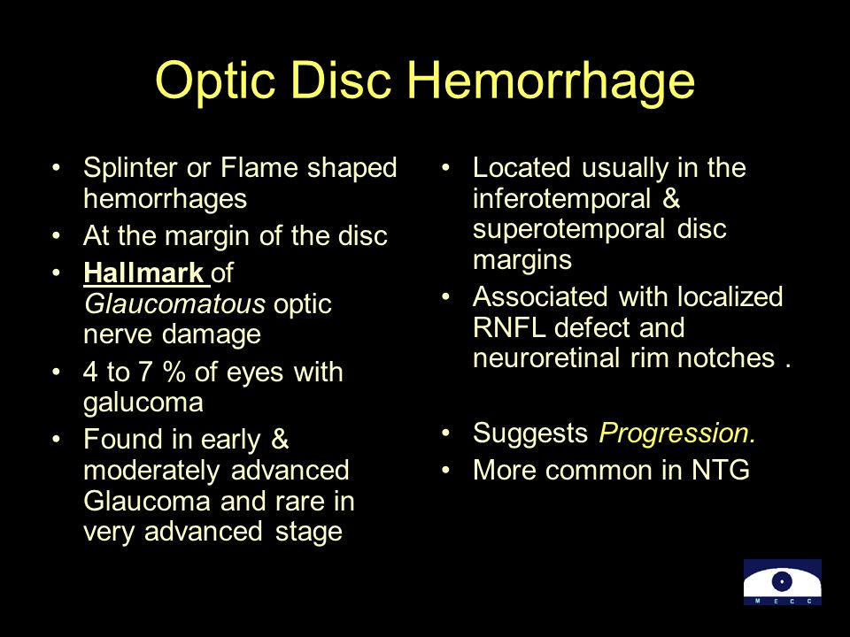 Optic Disc Hemorrhage Splinter or Flame shaped hemorrhages At the margin of the disc Hallmark of Glaucomatous optic nerve damage 4 to 7 % of eyes with