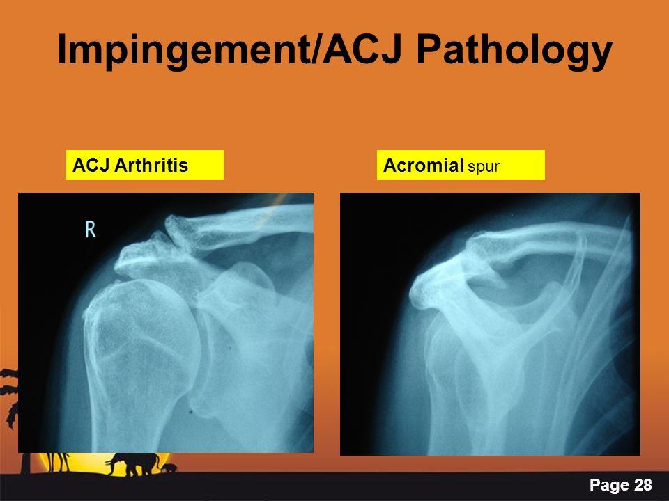 Page 28 Impingement/ACJ Pathology ACJ ArthritisAcromial spur