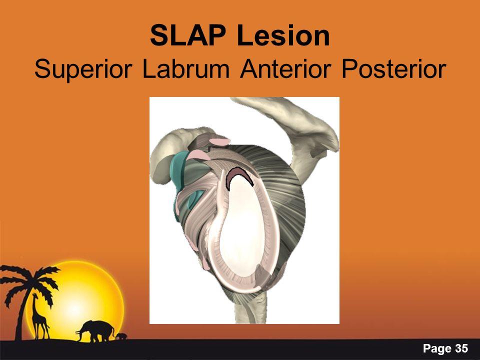 Page 35 SLAP Lesion Superior Labrum Anterior Posterior