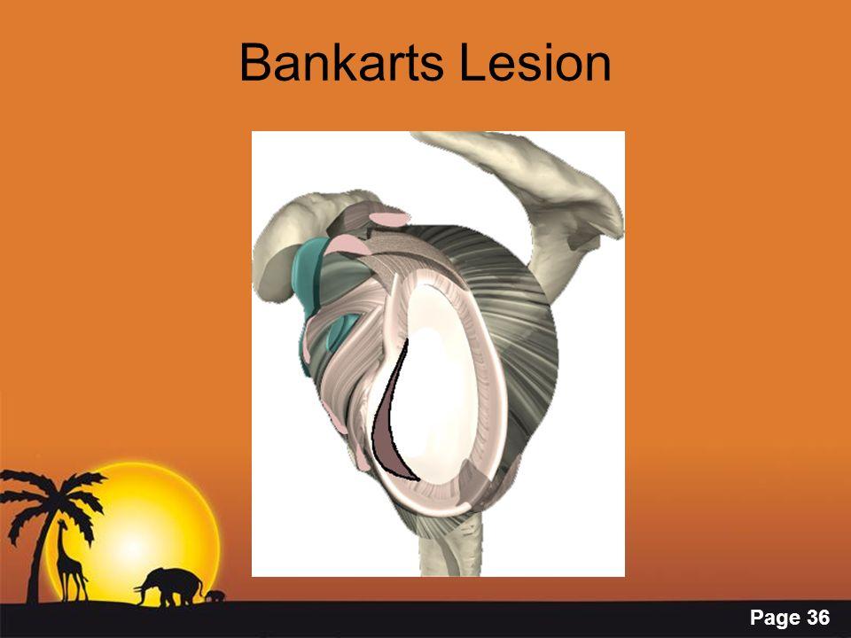 Page 36 Bankarts Lesion