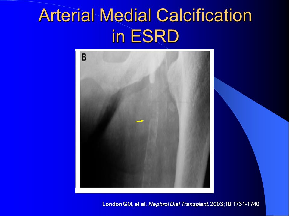Arterial Medial Calcification in ESRD London GM, et al. Nephrol Dial Transplant. 2003;18:1731-1740