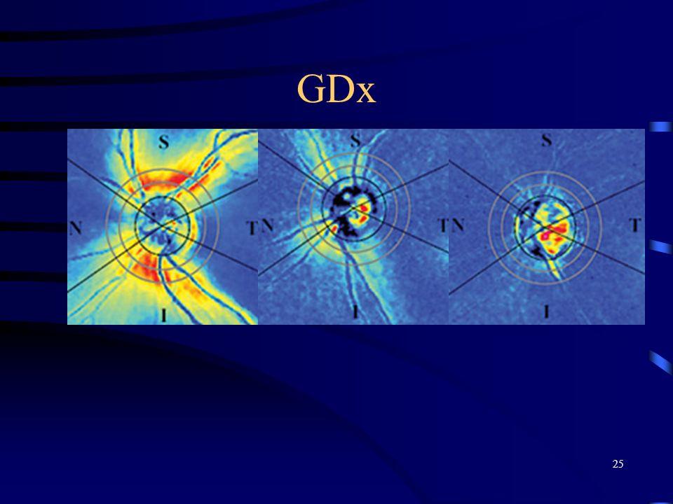 GDx 25