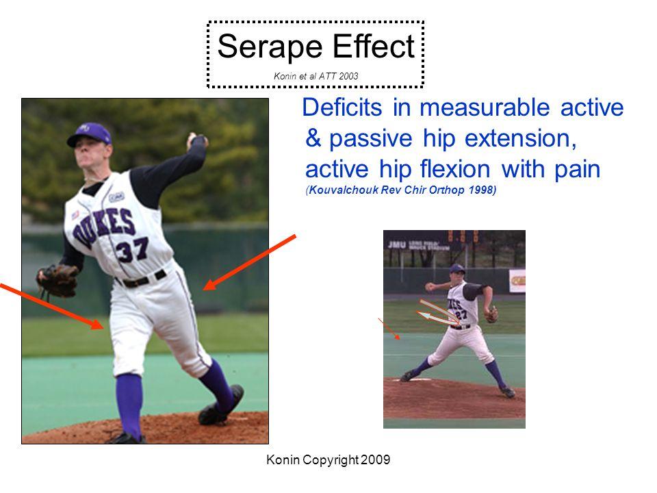 Konin Copyright 2009 Deficits in measurable active & passive hip extension, active hip flexion with pain (Kouvalchouk Rev Chir Orthop 1998) Serape Eff