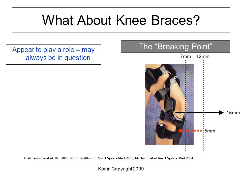 What About Knee Braces? Appear to play a role – may always be in question Pietrosimone et al JAT 2006, Naiibi & Albright Am J Sports Med 2005, McDevit