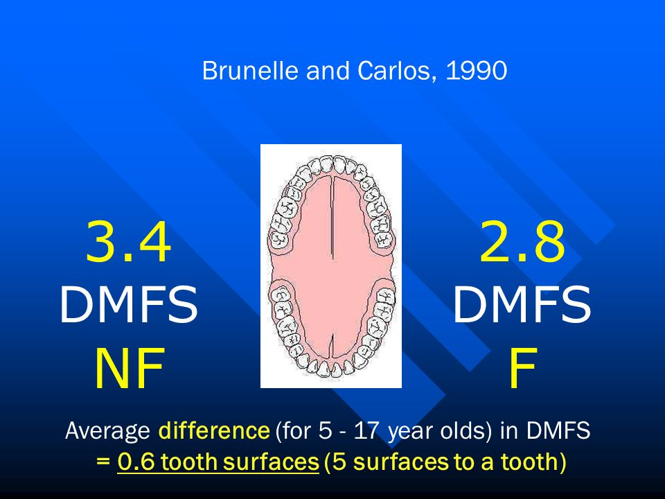 Brunelle and Carlos, 1990 Average difference (for year olds) in DMFS = 0.6 tooth surfaces (5 surfaces to a tooth) 3.4 DMFS NF 2.8 DMFS F