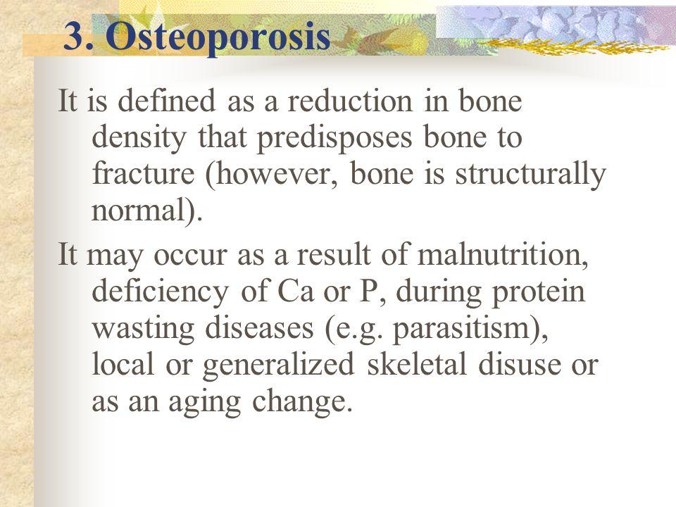 Diagnosis Diagnosis of osteomalacia required interpretation of bone pain, serum Ca, P & Vit D conc. Radiography and bone biopsy will also help in diag