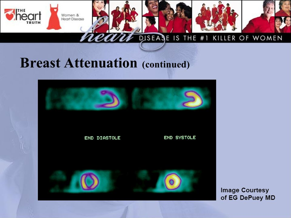 Breast Attenuation (continued) Image Courtesy of EG DePuey MD