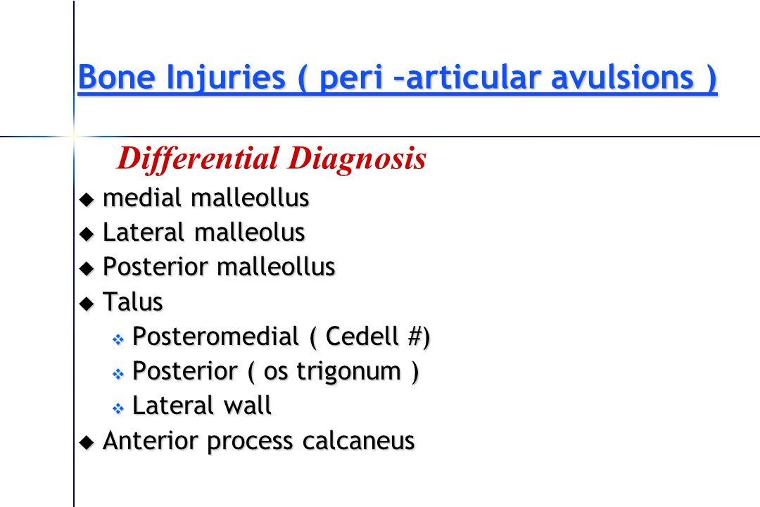 Bone Injuries ( peri –articular avulsions ) medial malleollus medial malleollus Lateral malleolus Lateral malleolus Posterior malleollus Posterior mal