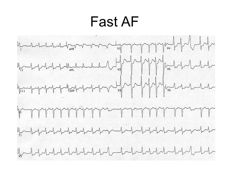 Fast AF