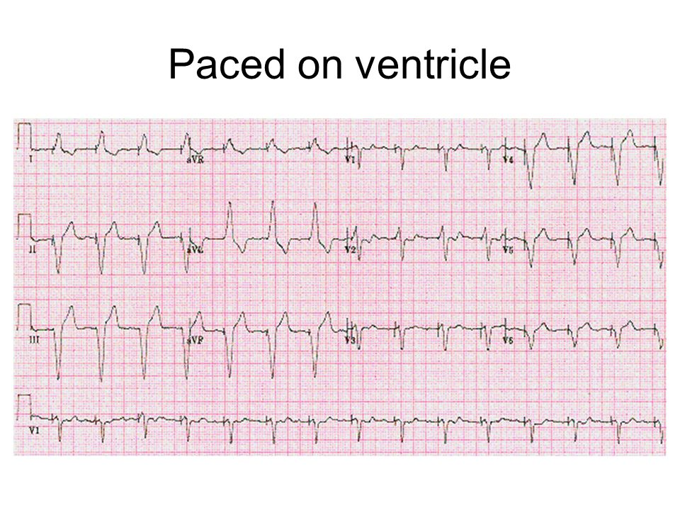 Paced on ventricle