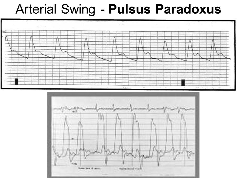 Arterial Swing - Pulsus Paradoxus