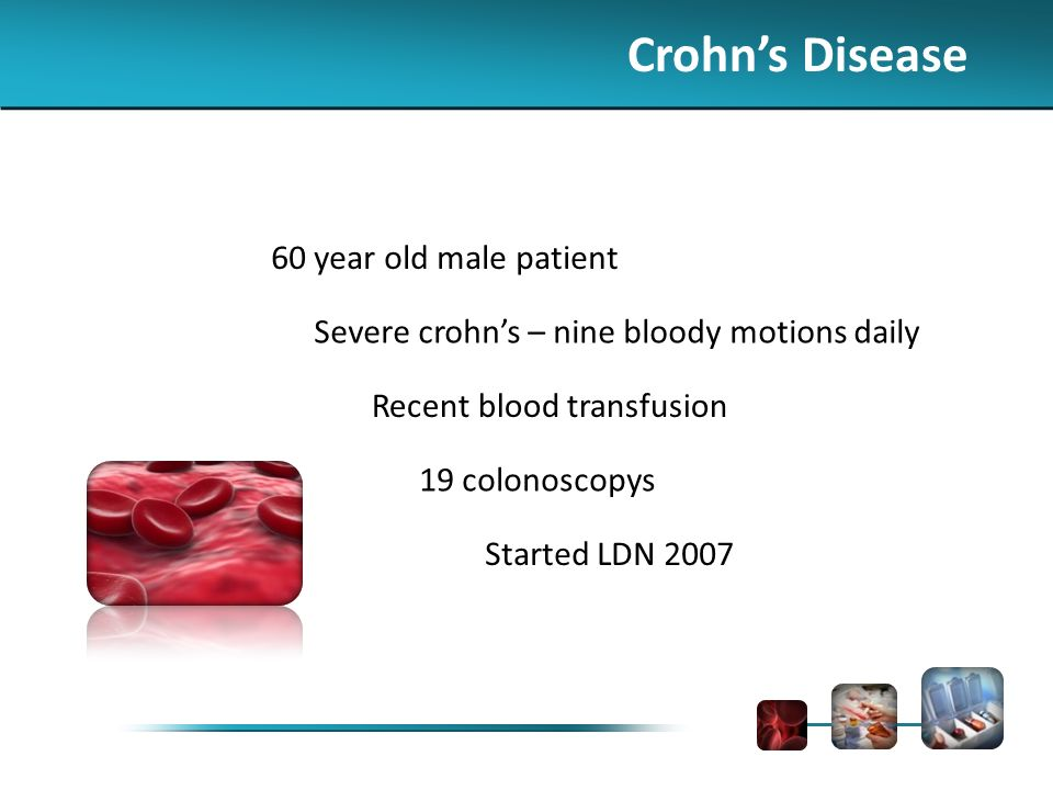 Crohns Disease 60 year old male patient Severe crohns – nine bloody motions daily Recent blood transfusion 19 colonoscopys Started LDN 2007