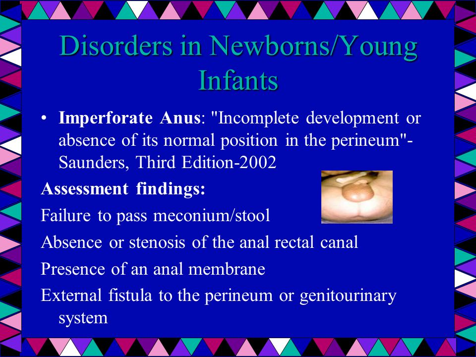 Disorders in Newborns/Young Infants Imperforate Anus: