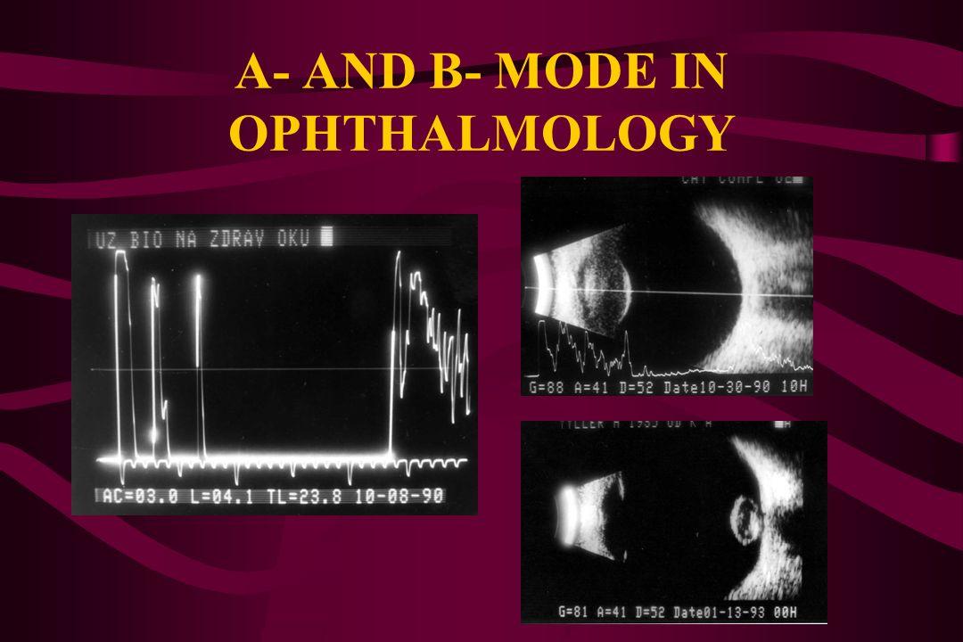 DIAGNOSTIC FREQUENCIES 10 - 20 MHz ophthalmology, special vascular exam 20 - 50 MHz endoluminal exam, ultrasound biomicroscopy (ophthalmology, dermato