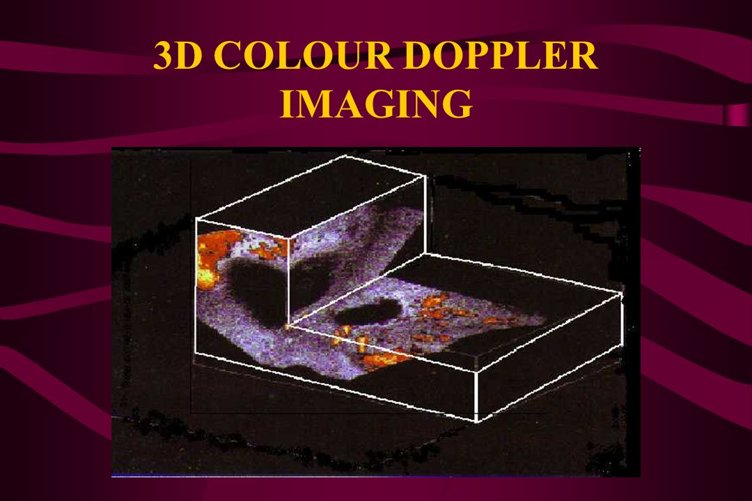 3-D COLOUR DOPPLER SONOGRAPHY REPRESENTS A COMBINATION OF 3-D AND POWER DOPPLER TECHNOLOGY: transducer elements are electronically or manually sectore