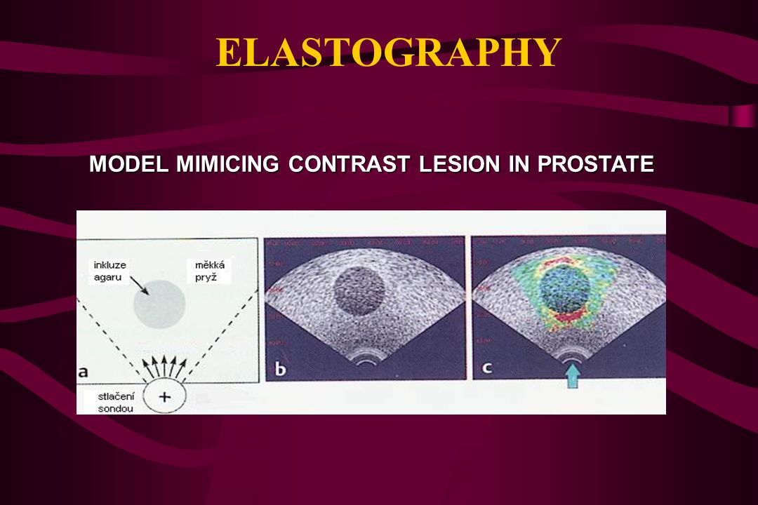 ELASTOGRAPHY METHOD FOR IMAGING THE ELASTIC PROPERTIES OF TISSUES REPRESENTS AN IMAGING ANALOGY TO PHYSICAL EXAMINATION BY TOUCH DIFFERENCES IN MECHAN