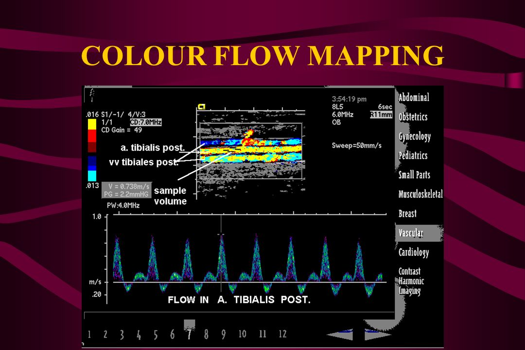 COLOUR FLOW MAPPING (common carotid artery)