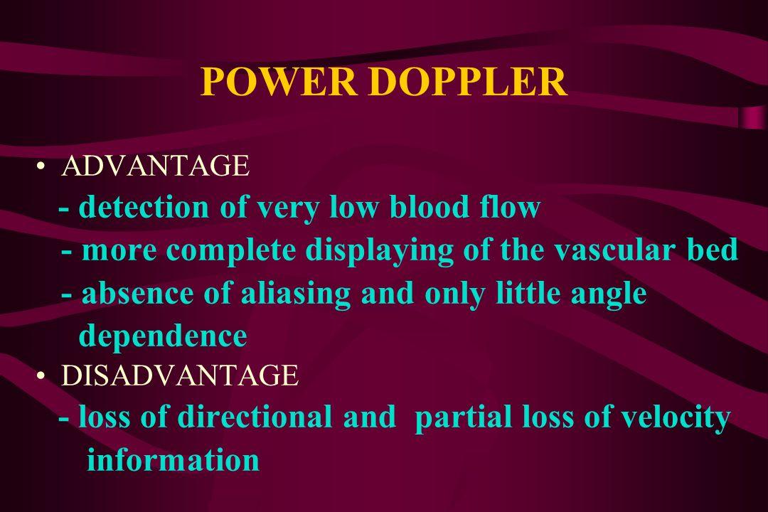 POWER DOPPLER (kinking of internal carotid artery)