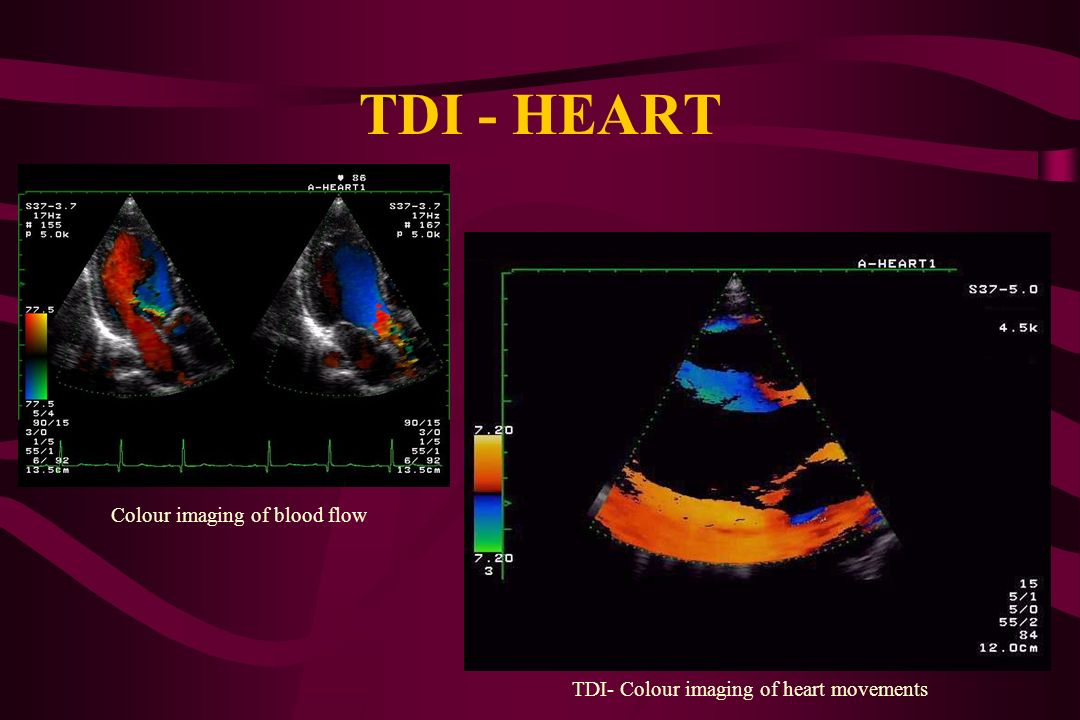 CLINICAL IMPORTANCE OF TDI ASSESSMENT OF MYOCARDIUM MOVEMENTS DURING HEART CONTRACTION ASSESSMENT OF DISTENSIBILITYAND COMPLIANCE OF VESSEL WALL ASSES