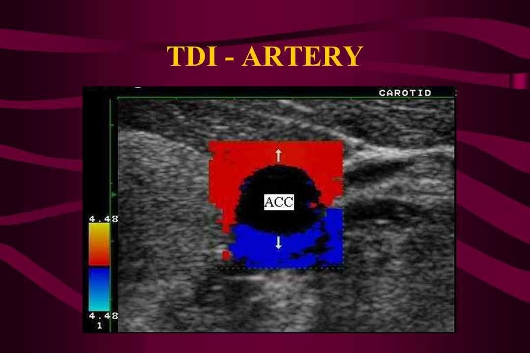 TDI - HEART Colour imaging of blood flow TDI- Colour imaging of heart movements