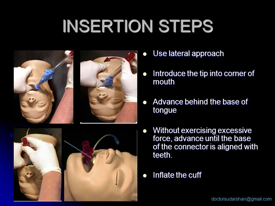 doctorsudarshan@gmail.com INSERTION STEPS Use lateral approach Use lateral approach Introduce the tip into corner of mouth Introduce the tip into corn