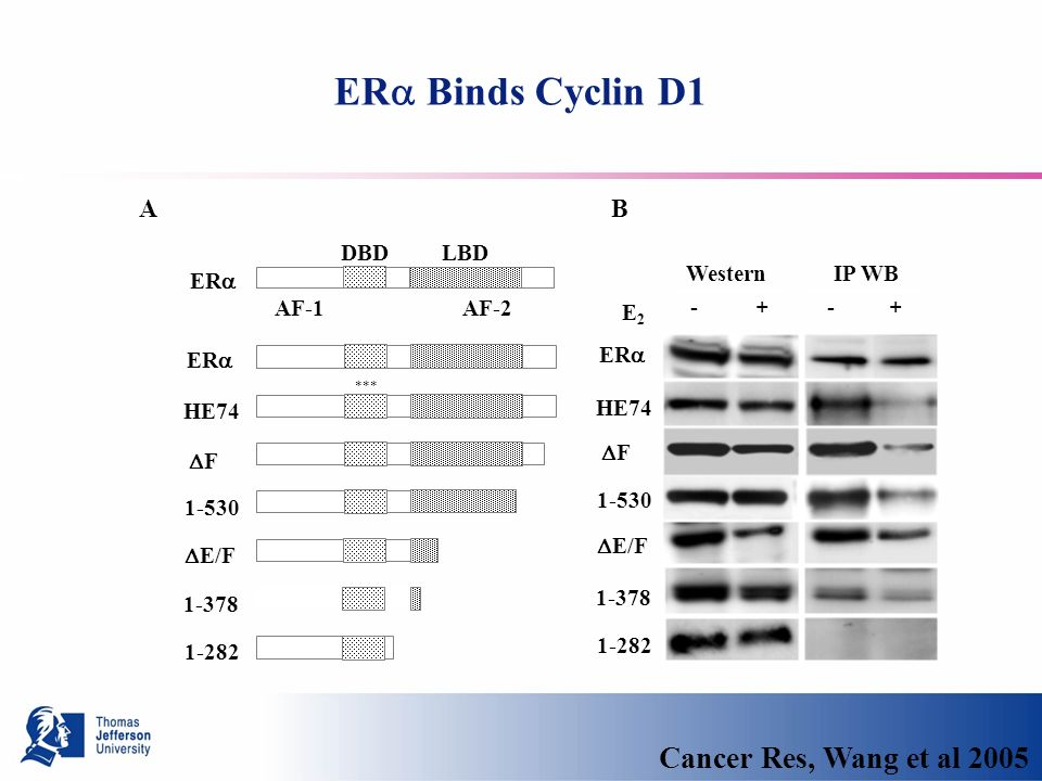ER Binds Cyclin D1 WesternIP WB E2E2 - + - + AB ER HE74 F 1-530 E/F 1-282 DBD LBD AF-1 AF-2 1-378 ER HE74 F 1-530 E/F 1-282 1-378 *** Cancer Res, Wang et al 2005