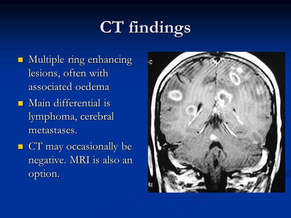 CT findings Multiple ring enhancing lesions, often with associated oedema Multiple ring enhancing lesions, often with associated oedema Main different