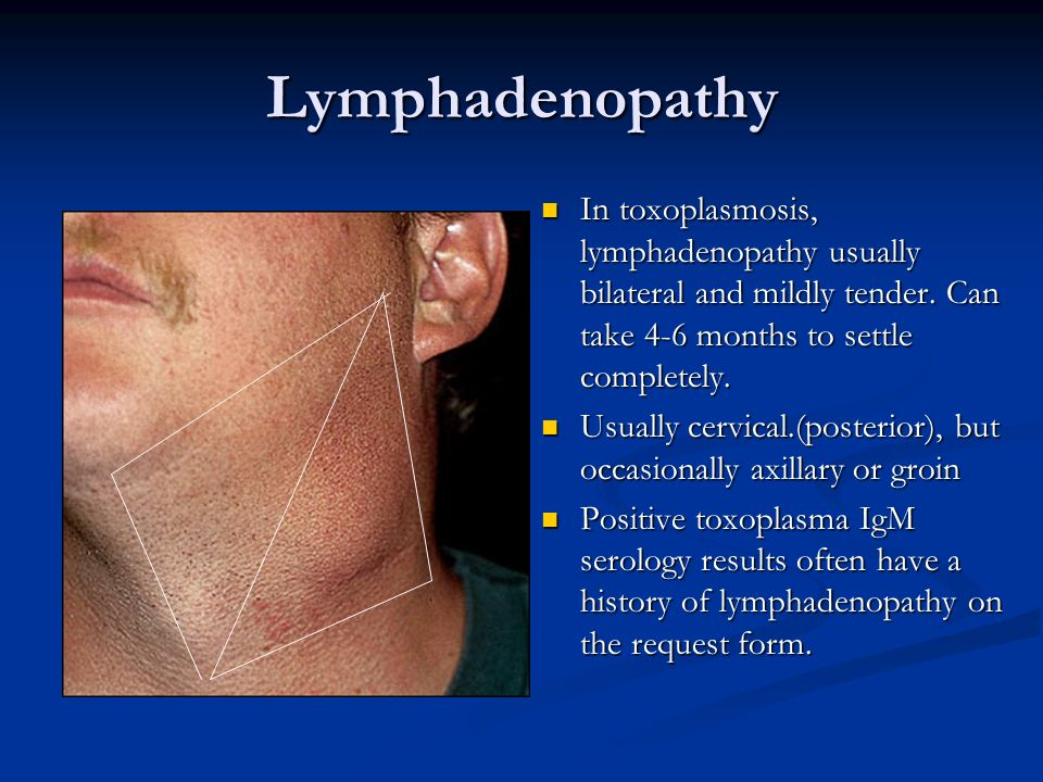 Lymphadenopathy In toxoplasmosis, lymphadenopathy usually bilateral and mildly tender. Can take 4-6 months to settle completely. Usually cervical.(pos