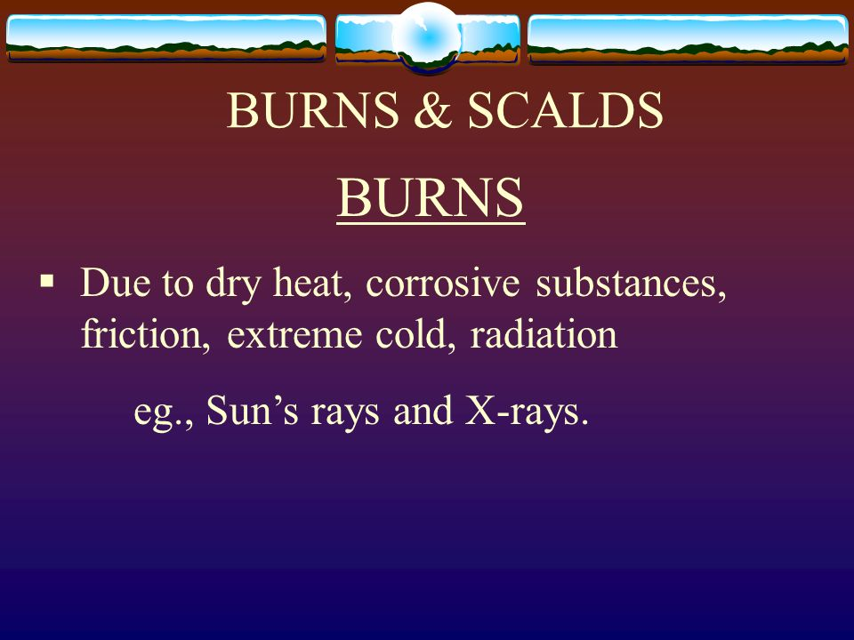 BURNS & SCALDS BURNS Due to dry heat, corrosive substances, friction, extreme cold, radiation eg., Suns rays and X-rays.